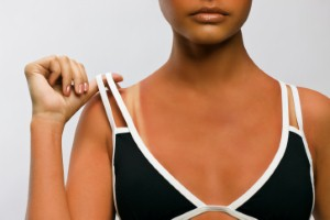 Body detox alternatives for weathering a sunburn