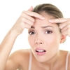 Dont-be-stressed-about-spots-any-longer_360_40143594_1_14106796_100.jpg