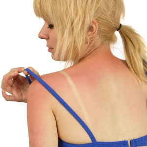Treating a sunburn and preventing your skin from ultraviolet ray damage